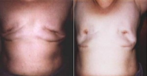 Photos of what happens when removing silicone deforms the breast. Click for larger view.